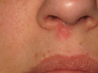 cold sores on or in nose